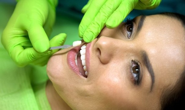 dentist placing veneers in Attleboro on woman