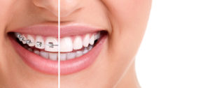 Why You Might Need A Tooth Extraction Before Braces