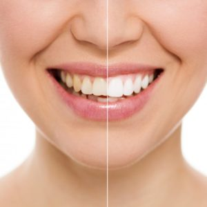 woman before after teeth whitening