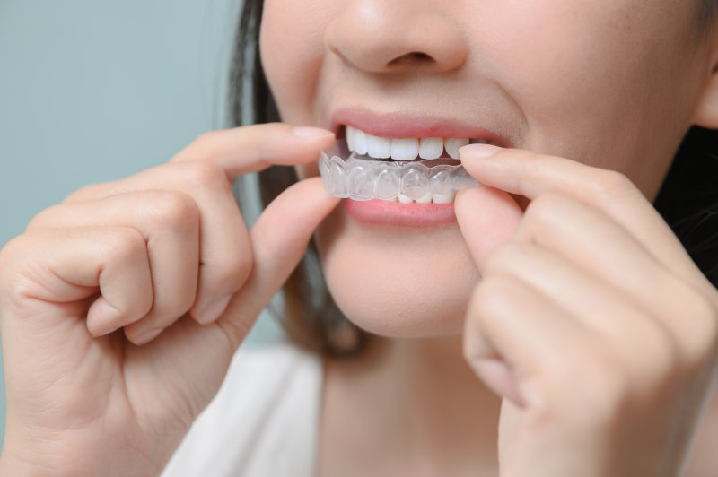 girl putting on Invisalign clear aligners